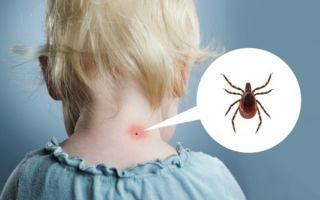 Что делать если ребенка укусил клещ