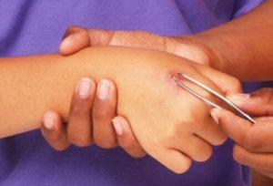 лечение укусов осы