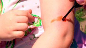 обработка укуса осы