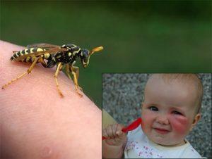 аллергия у ребенка от укуса пчелы