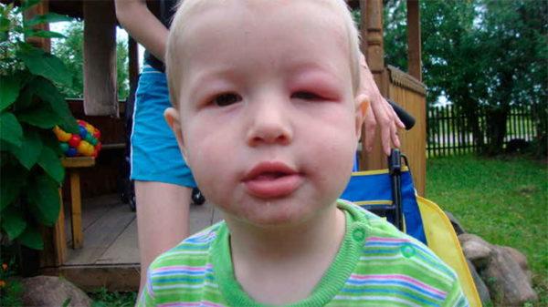 мальчика укусила пчела