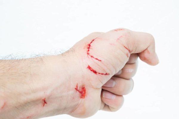 опасность укуса кота