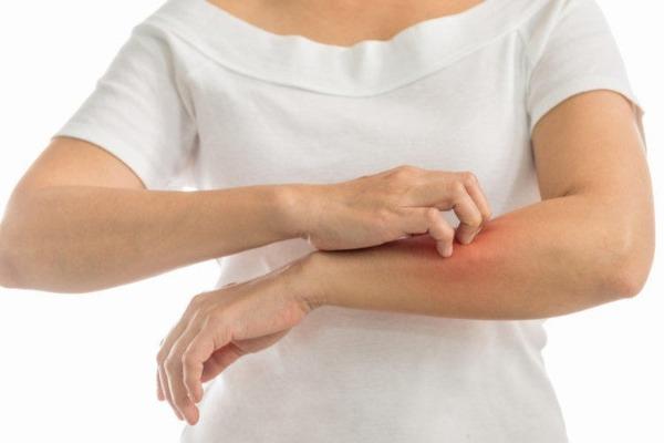 аллергия на укус комара